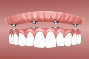 dentures implants Polaris dentist